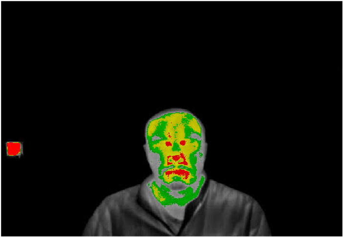 How to Evaluate Body Temperature Camera Solutions